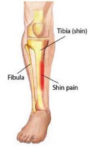Lower-Leg-Pain