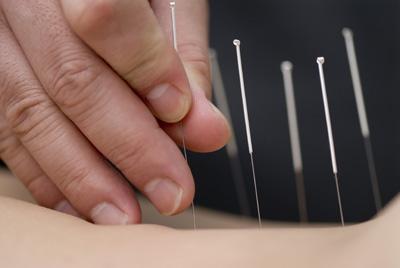 Acupuncture-1
